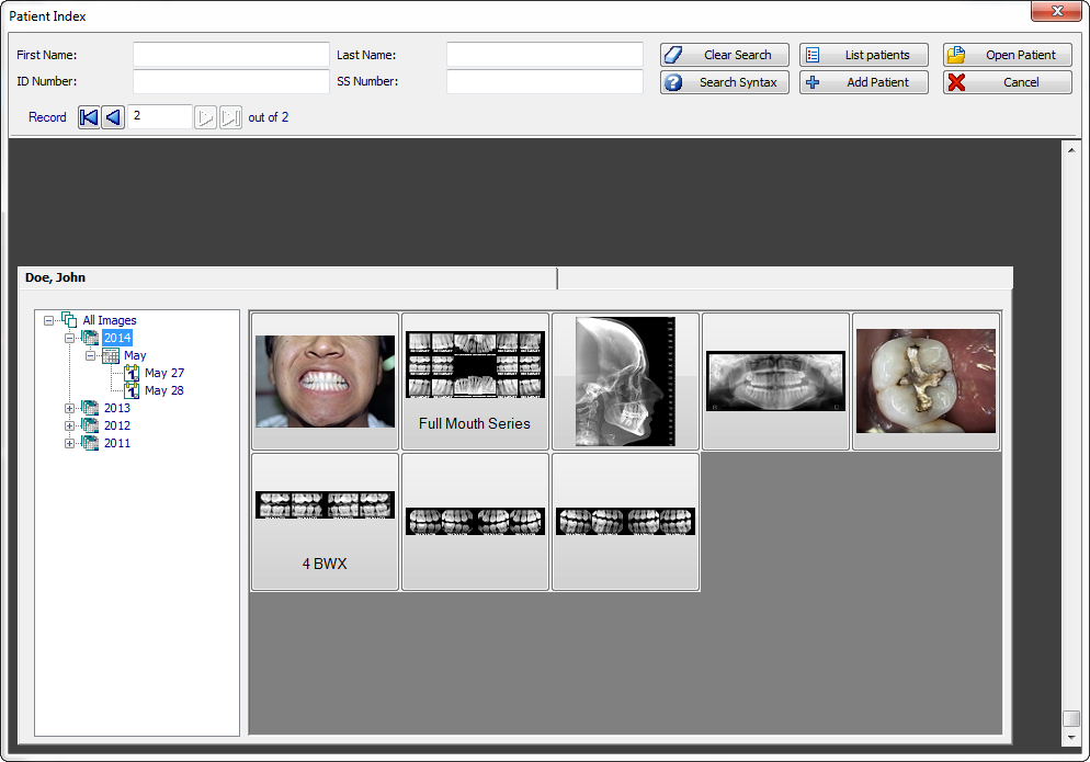 Apteryx XrayVision Full Latest Version
